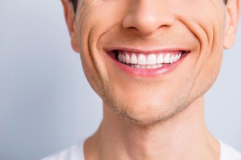 ventajas-de-los-implantes-dentales
