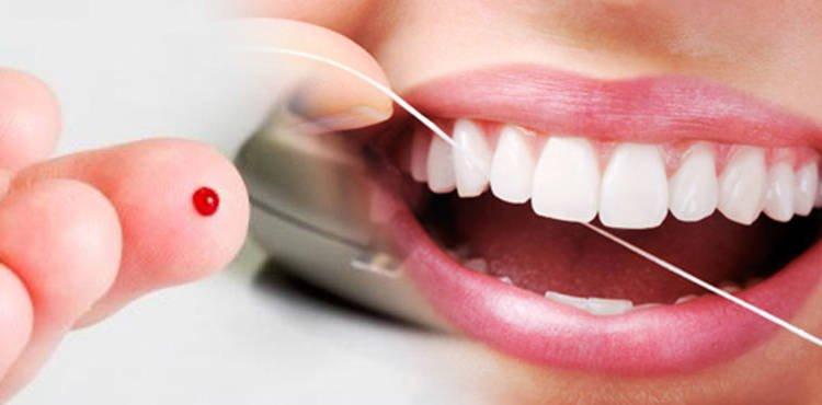 Cuidados Odontológicos en el paciente diabético