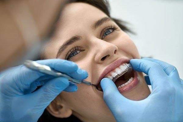 ortodoncia-diseño-de-sonrisa